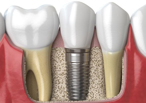 Implant Dentistry
