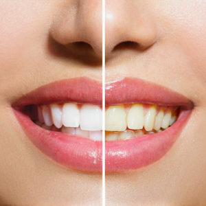 How to Brighten Up Your Smile?