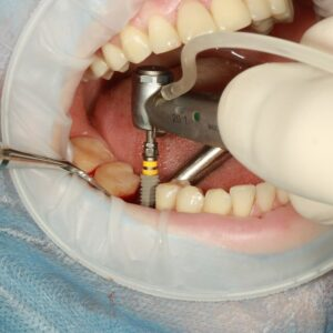 A Basic Guide to Dental Implants and What to Expect